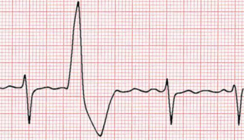 Ventricular Ectopic Beats as Ventricular Ectopics or